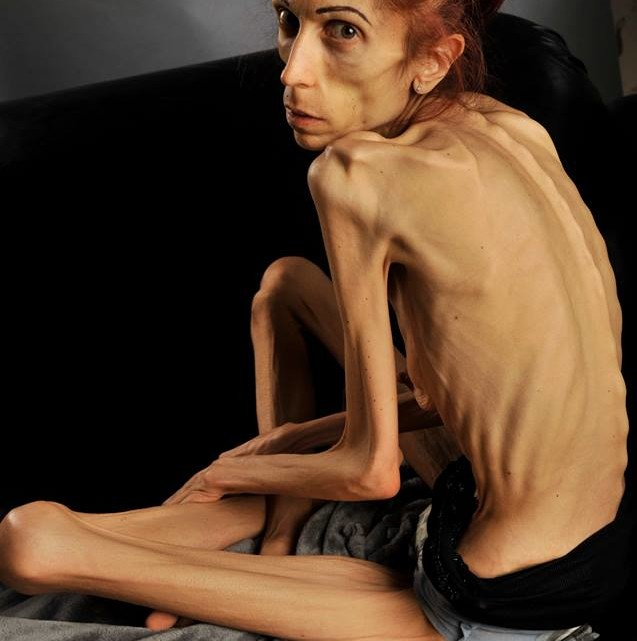 anorexica34