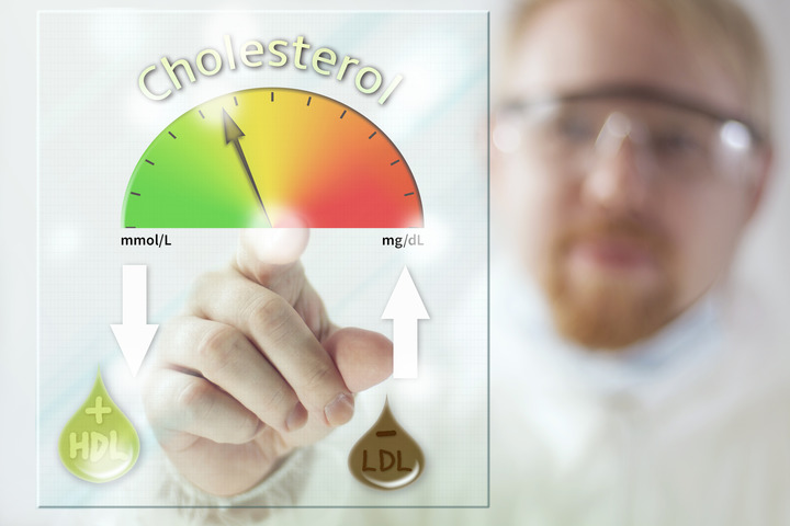 colesteroloq